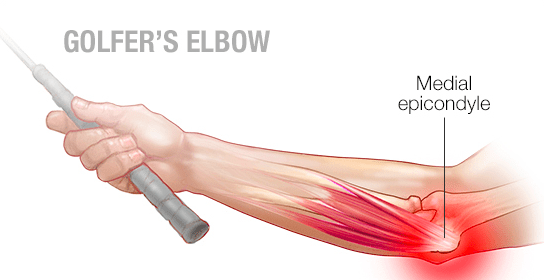 golfers-elbow