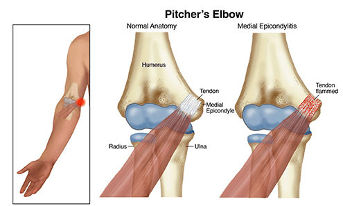 pitchers-elbow